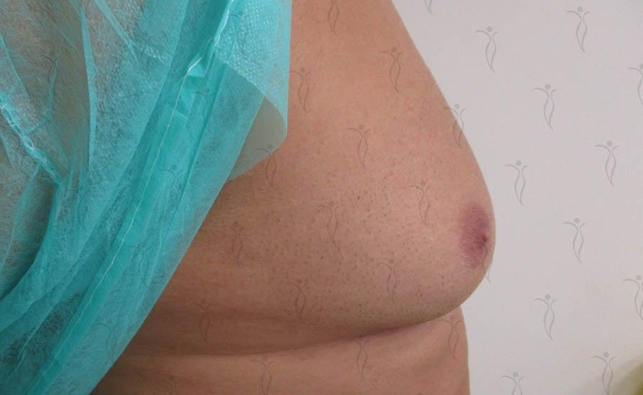 Θεραπεία Γυναικομαστίας