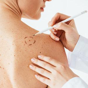 afairesi-melanomatos