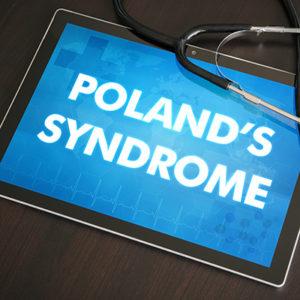 polands-syndrome